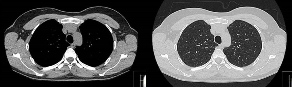 CT-Low-dose-thorax.jpg